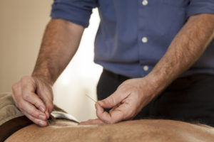 Acupuncture services performed on the low back muscles